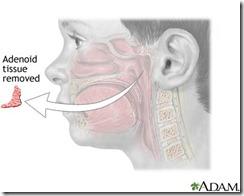 adenoid dah diambil
